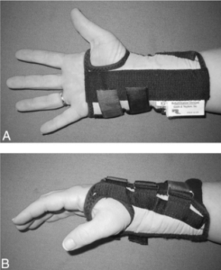 Front and Side view of a participant wearing a D-ring wrist brace.
