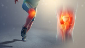 an animated image of a runner mid-stride with the pain region for patellofemoral pain syndrome highlighted