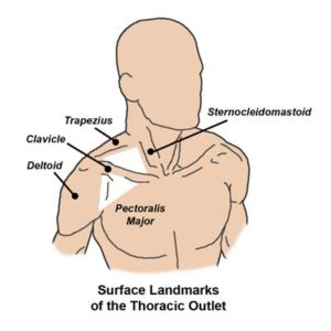 Male figure shown with location of thoracic outlet between the base of the neck, the clavicle and the arms.