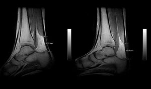 MRI image of the side of two ankles with one having the foot on a wedge mimicking wearing high heels and one having the foot flat on the ground