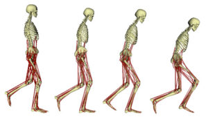 The effect of crouch gait on human posture.