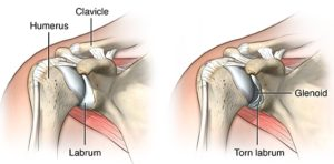 image showing the difference between a healthy labrum and a torn labrum