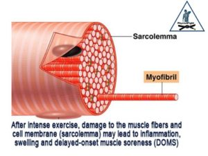 Inflammation of muscle fibers due to over exertion