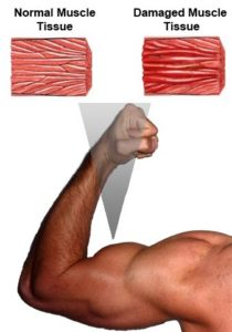 Normal muscle tissue in the arm versus strained muscle tissue