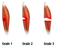 Damaged muscle torn across the fibers
