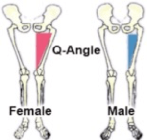 Differences between female and male lower-body anatomy show the disparity in Q-Angle that results