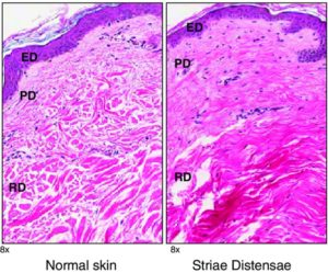 Difference between normal skin tissue and stretch mark tissue