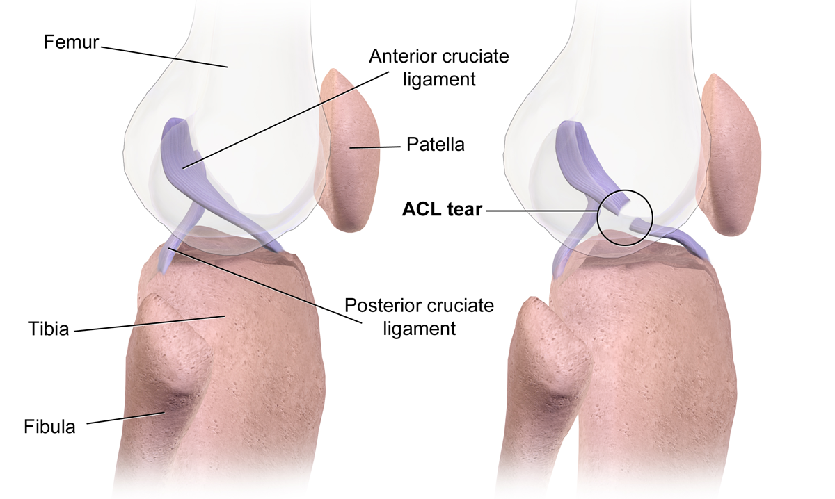 Location of the ACL inside the knee joint with other labeled bones and ligaments with another diagram showing a ruptured ACL.