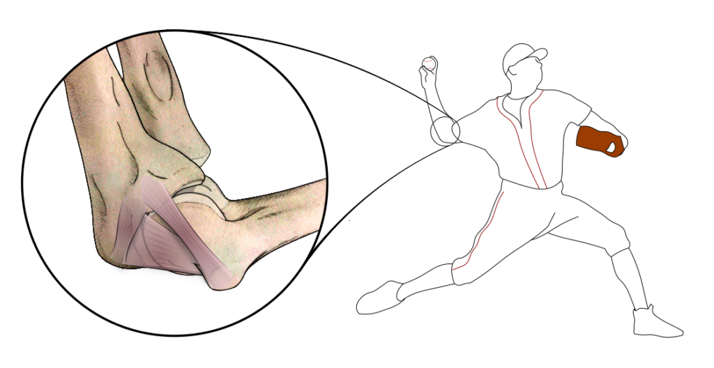 Location of the Ulnar Collateral Ligament in the human arm, shown on a baseball pitcher.