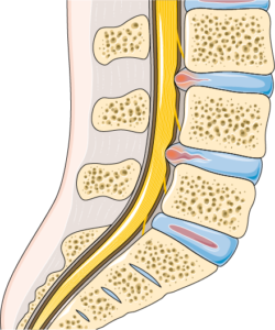 Computer generated image of a lumbar spine with disc herniation.