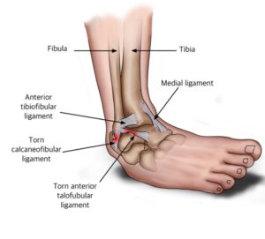 An image depicting the various ligaments of the ankle, both lateral and medial.