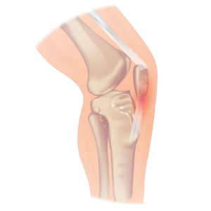 A schematic of the knee and patellar tendon.