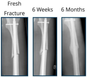 Images of a broken bone and the progression of a callus being formed over time