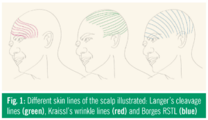 Figure 1 outlines the differences of Langer's lines, Kraissl's lines, and Borges's RSTL on the human face.