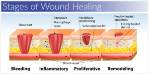 This figure shows each stage of wound healing, as is outlined by the supporting paragraph.