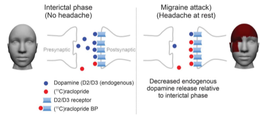 Figure showing dopamine levels decreasing during the onset of a migraine.