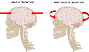 This image presents two human skull and brain combinations. The left skull has red horizontal arrows pointing to the brain to depict the linear acceleration of the head during a concussion. The right skull has red arrows acting in a circular manner around the head to represent rotational acceleration acting on the brain during concussion