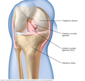 A photo showing the location of the PCL and ACL inside of the right knee. The ACL crosses from left to right over the PCL. Both are attached at the top to the femur and at the bottom to the tibia.