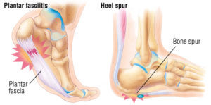 Artist's rendition of the medical conditions plantar fasciitis, where the ligament is damaged and swollen, and heel spurs, where abnormal bone growth is seen to to ligament damage.