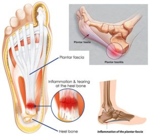 Image showing the plantar fascia ligament and where inflammation is common