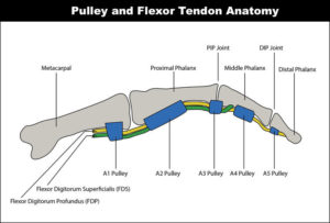 Diagram of the hand showing the tendons and pulleys