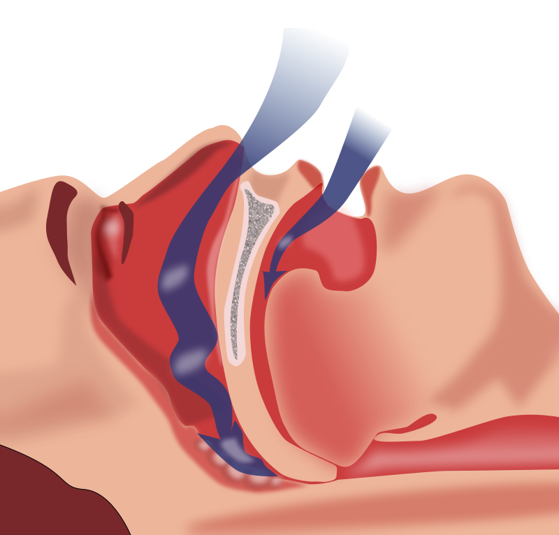 Diagram of airflow obstruction through mouth and throat