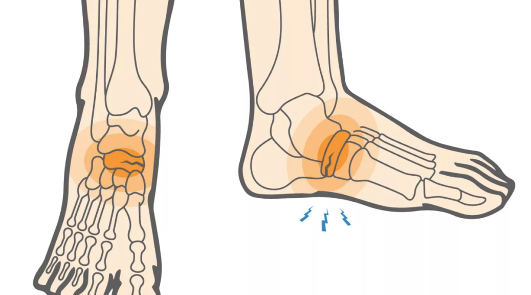 Drawing of the bones in the foot with emphasis on the small crack, a stress fracture, in the navicular bone.