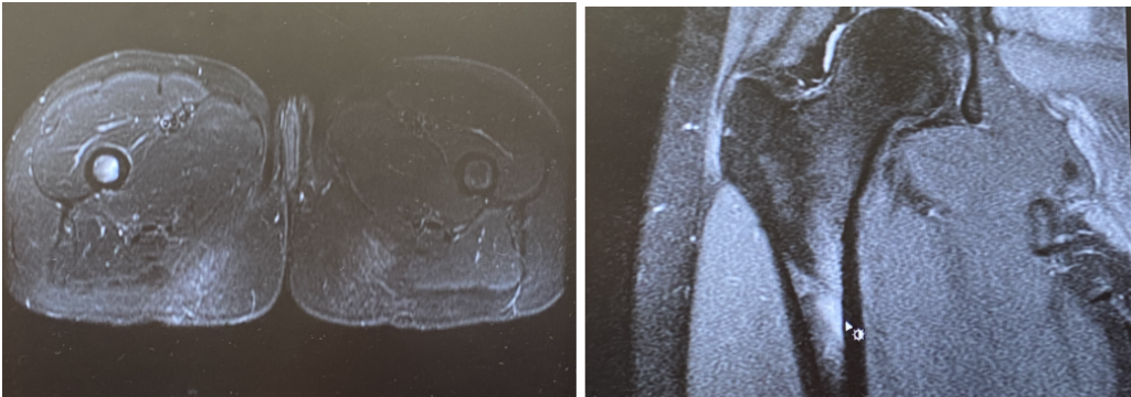 Photograph of a stress reaction in the femur of a female runner
