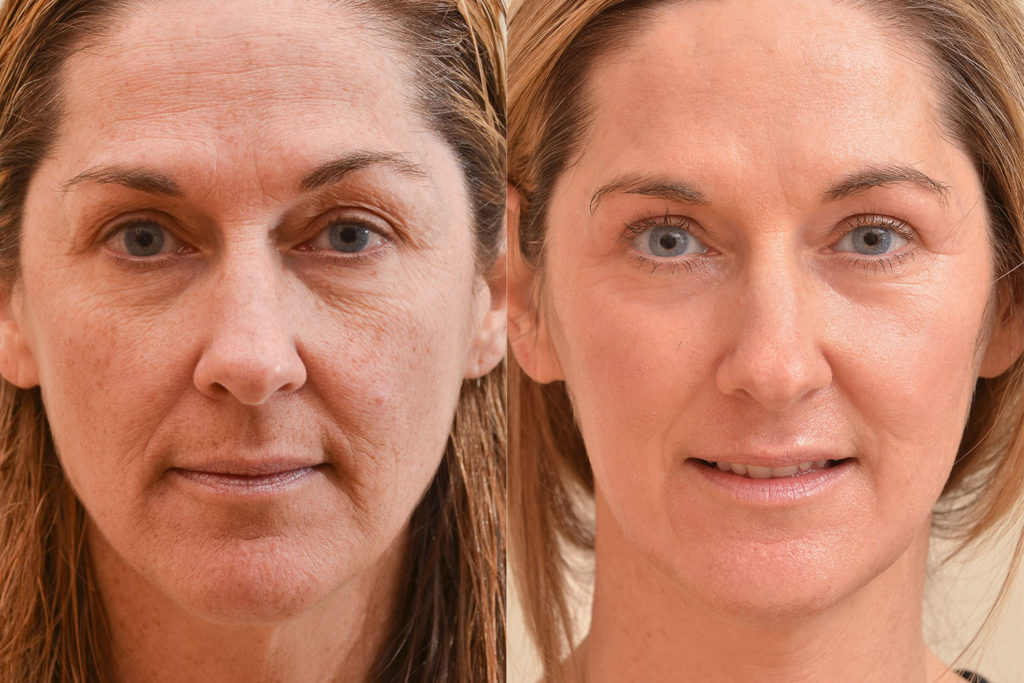 A figure with 2 side-by-side photos that show the effect of laser resurfacing before and after the treatment. The wrinkles of the person's face reduces.