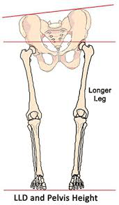 Image depicting pelvic tilt when leg length discrepancy is present