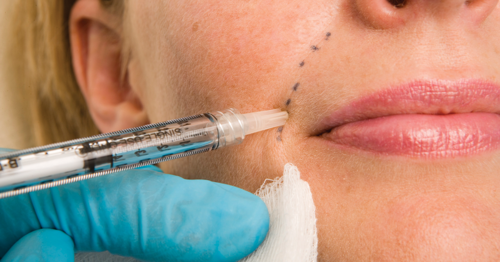 The picture shows a person's lower half of the face with dash line indicating where the nasolabial line is. A needle is pointing at the dash line mimicking the process of skin filler injection.